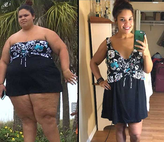 Medical Weight Loss 5